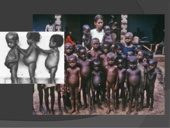 malnutrition-4-638